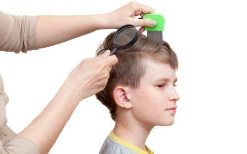 Проверка головы на вшивость