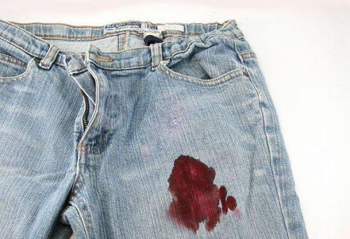Как вывести пятна крови с джинсов