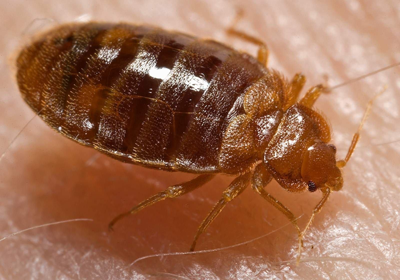 Picaduras de pulgas en humanos fotos 32