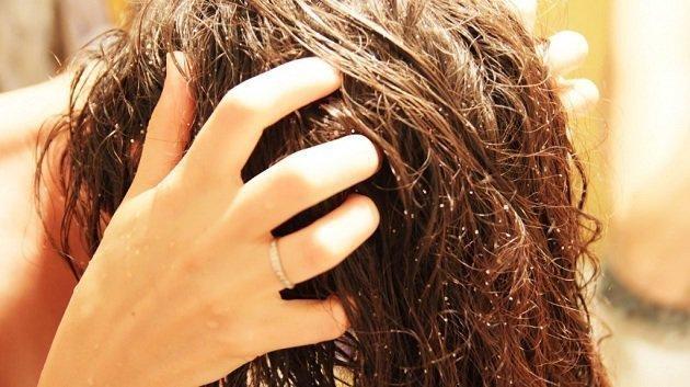 Мытье головы уксусом