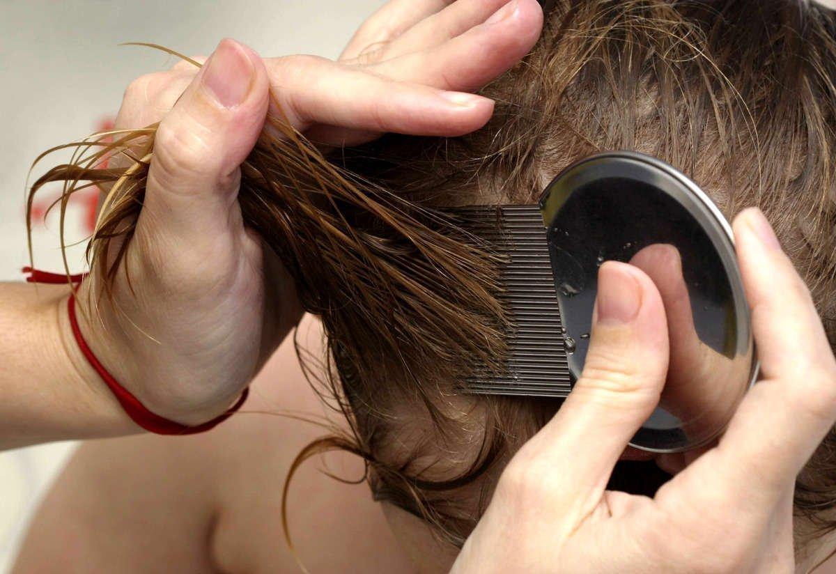Как сделать раствор уксуса для выведения вшей